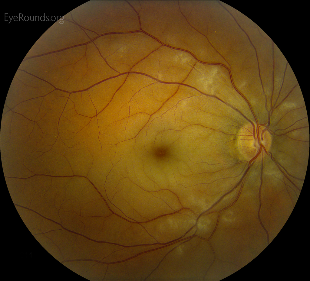 online atlas of ophthalmology  the university of iowa