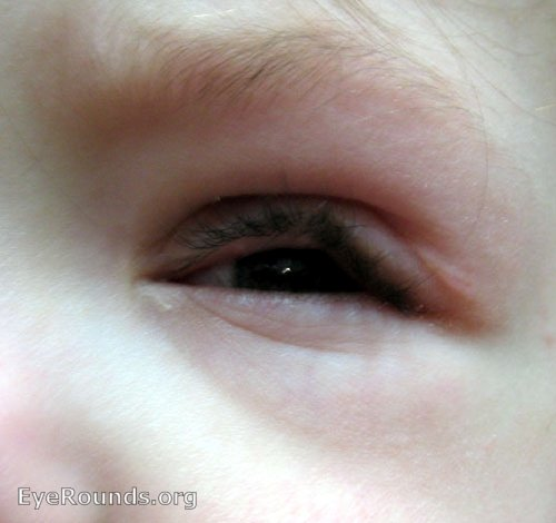 Neurofibromatosis type 1 (NF-1) S-Shaped Ptosis EyeRounds ...