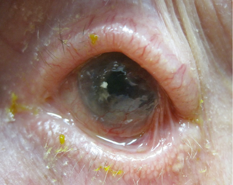 Ocular cicatricial pemphigoid atypical presentation for Mucus fishing syndrome