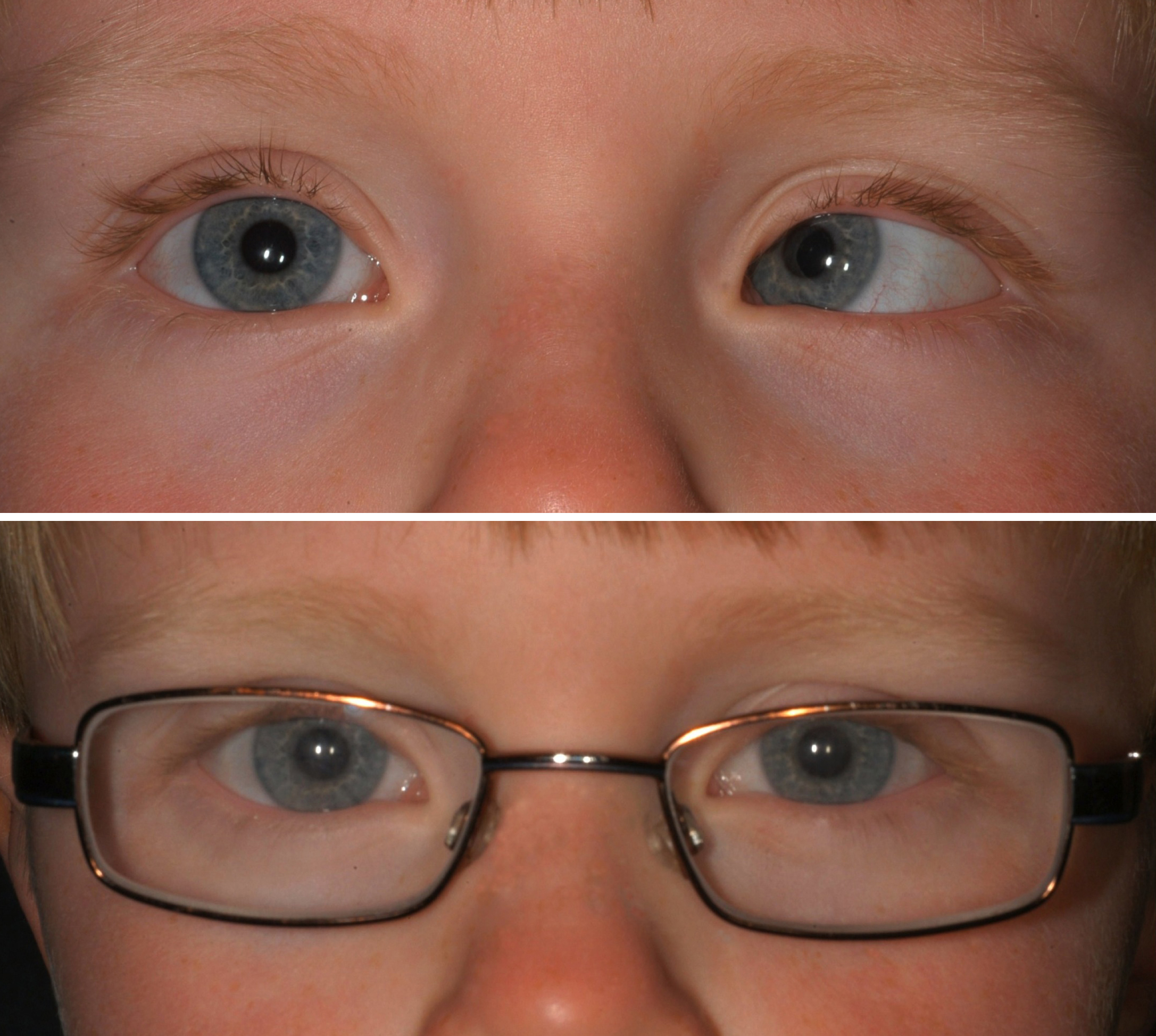 strabismus adults Treatment