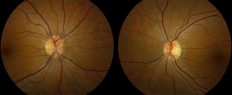 Color fundus photo of right and left eye