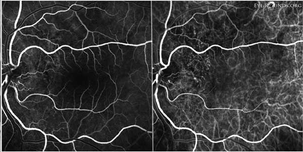 Figure 10: OS FFA (left) and ICG (right) showing subtle punctate areas of hyperfluorescence just temporal to the nerve, most consistent with polypoidal lesions.