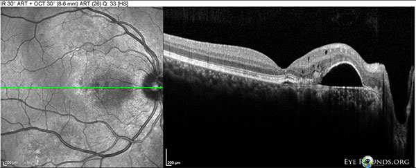 Figure 7: OD Spectralis OCT of the macula at 10 month follow-up showing a large PED between the fovea and disc, with mild overlying intraretinal cystic degeneration.