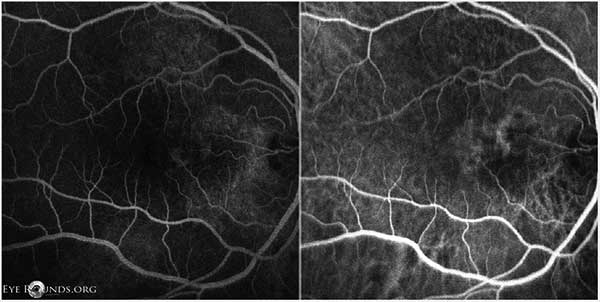 Figure 9: OD FFA (left) and ICG (right) showing punctate fluorescent lesions temporal to the optic nerve in the nasal macula, most consistent with polypoidal lesions.