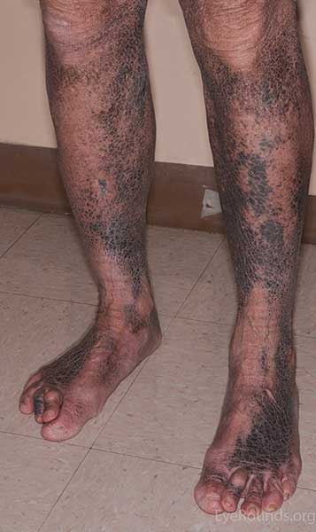 Lower extremity hyperpigmentation