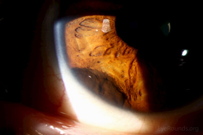 Top right:  On higher power magnification, the lesion appears elevated and the surface of the lesion is mildly irregular without surface vessels and the iris central to the lesion is pushed into folds.