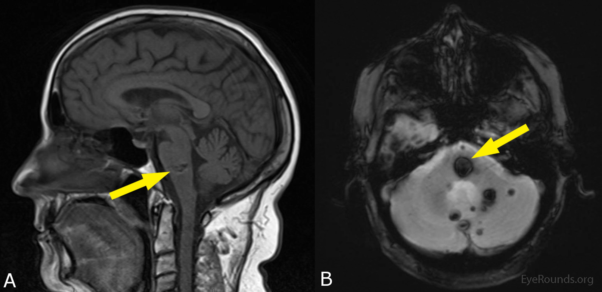 Cerebral Cavernomas: A Cause of One-and-a-Half Syndrome