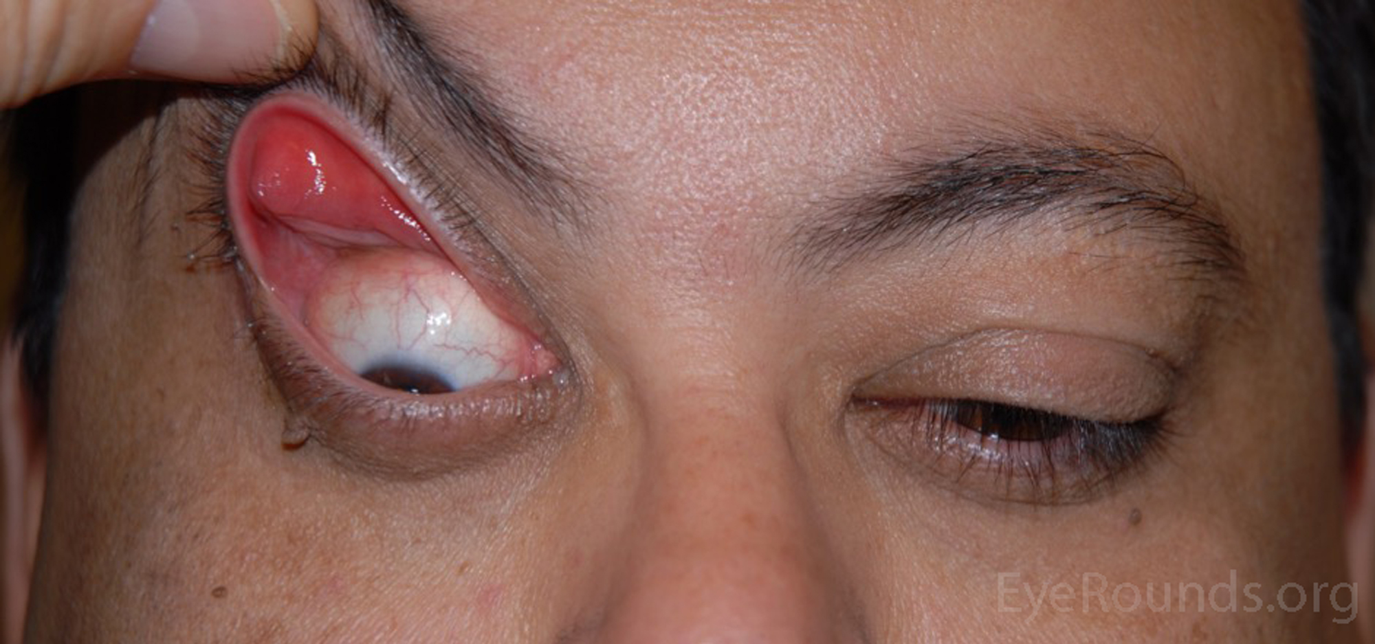 Floppy Eyelid Syndrome