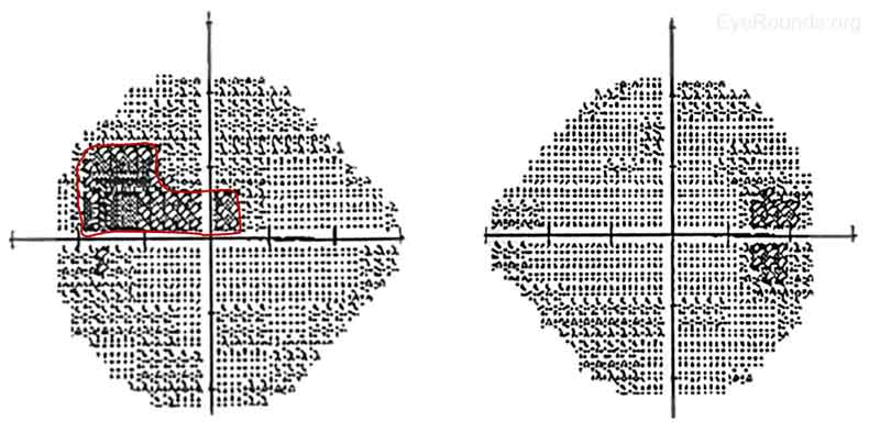 Figure 4: Humphrey Visual Fields 24-2, OU. Right eye- Several inferior and superior nonspecific visual defects, although test reliability was only fair due to 4 out of 11 fixation losses; Mean deviation -6.12dB, Pattern standard deviation 1.75dB. Left eye- Superior field deficit (red) with extension into the central field consistent with optic nerve head swelling inferiorly and subretinal fluid that extended into the macula; Mean deviation -7.88dB, Pattern standard deviation 3.73dB.