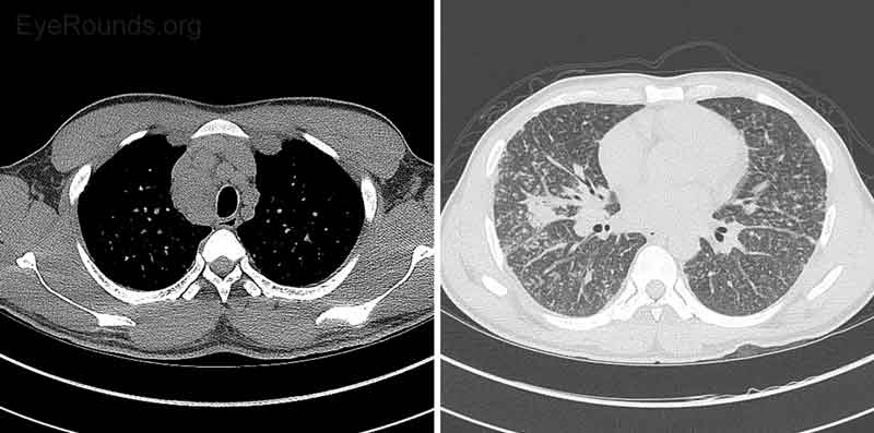 Figure 6: CT Chest without contrast. Diffuse lymphadenopathy was present and nonspecific, but given the diffuse nature was most consistent with systemic disease such as sarcoid or lymphoma. Diffuse prominence of bronchovascular interstitium with associated nodularity was nonspecific. More focal consolidation in the right middle lobe, tree-in-bud nodularity in the inferior right upper lobe, and centrilobular ground-glass nodules suggested more acute inflammatory bronchial process, such as bronchitis. Although a CT pattern of alveolar sarcoid can present with ground-glass opacities, the pattern the patient presented with was more typical of centrilobular bronchitis.