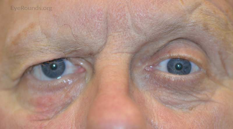 External photo demonstrates right-sided facial droop, brow ptosis, and lower eyelid ectropion.
