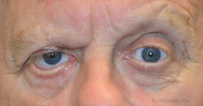 External photo at 3 month post-operative visit showing right brow ptosis and lower eyelid ectropion