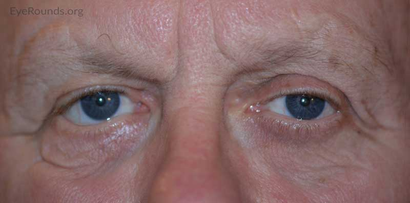 External photo at 6 month post-operative visit showing improved right brow ptosis and lower eyelid ectropion.