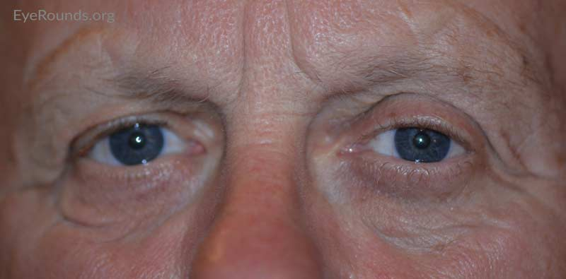 External photo at 10 month post-operative visit showing mild residual right brow ptosis and lower eyelid ectropion.