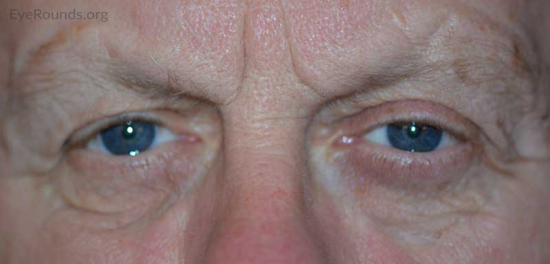 External photo at 18 month post-operative visit showing resolution of right brow ptosis and lower eyelid ectropion, as well as an increased tear lake height.