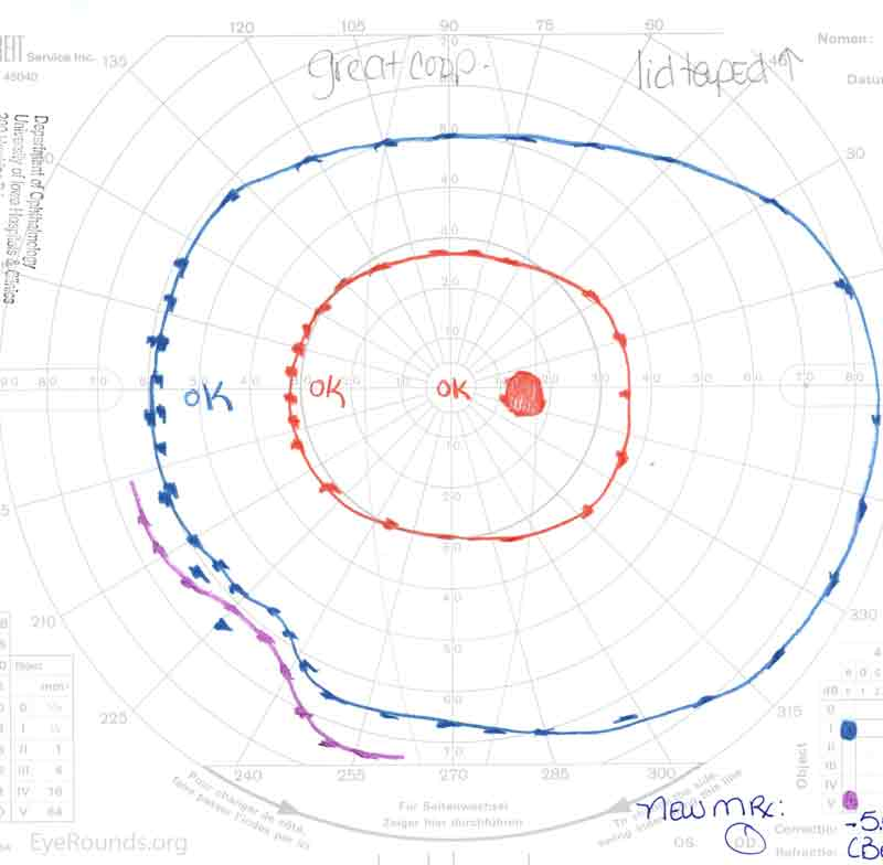Goldmann visual field (A) OD showing a full field and (B) OS showing generalized constriction with only a small paracentral island of l2e remaining.
