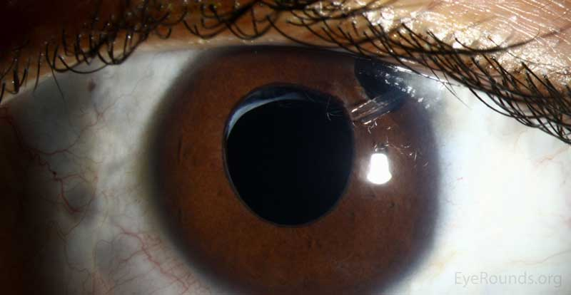 Slit lamp photograph demonstrating Baerveldt tube emerging anteriorly, through the iridectomy.