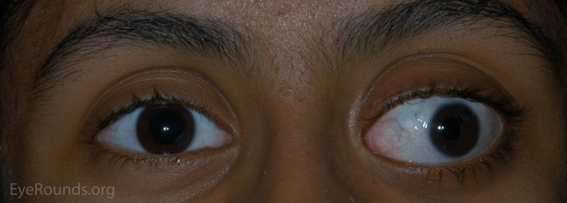 External photograph demonstrating significant buphthalmos, eyelid retraction, and exotropia OS.