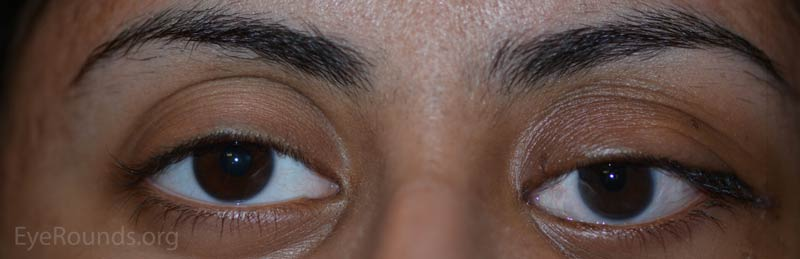 External photograph demonstrating improved eyelid retraction, alignment, and proptosis after orbital decompression and strabismus surgery.
