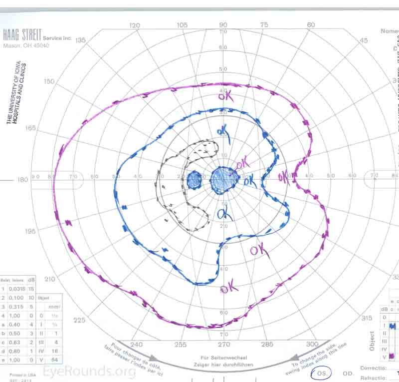 Goldmann visual field OS showing general constriction with superior and inferior arcuate scotomas, along with a central scotoma.