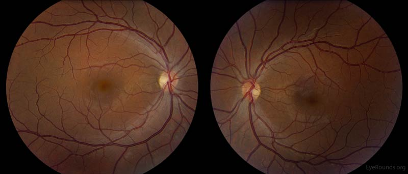 Color Fundus Photography, OU. Both optic nerves had temporal pallor. There was a normal macular sheen with faint RPE changes OU.