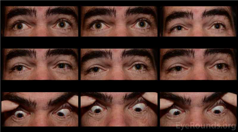 Nine-gaze eye motility photographs at initial presentation, post-neostigmine testing. Note the mild-moderate improvement in ptosis and ductions OU compared to those in Figure 1.