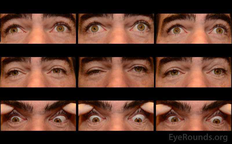 Nine-gaze eye motility photographs pre-neostigmine testing at initial presentation. Note the bilateral ptosis (OD > OS), marked frontalis action, and near complete ophthalmoplegia OU.