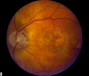 Fundus image, OS, ten weeks after initial infection. The vitreous space is clear and retinal hemorrhages have resolved. The retina had atrophy and occult choroidal neovascularization.