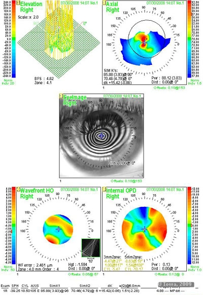 Surgical Management of Keratoconus
