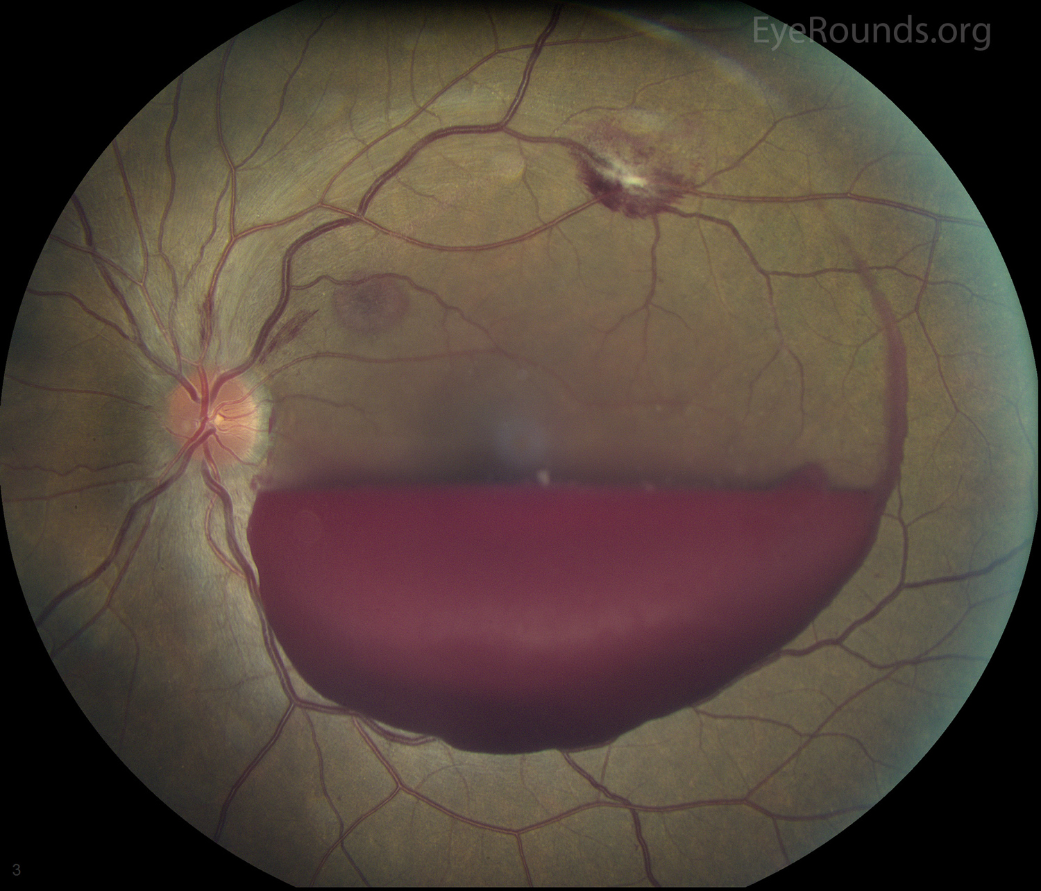 Vitreous Hemorrhage: From One Medical Student to Another